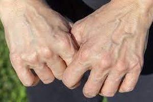 Giãn tĩnh mạch bàn tay có khó trị?