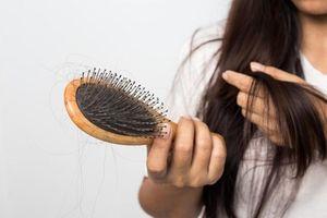 Những bài thuốc trị rụng tóc