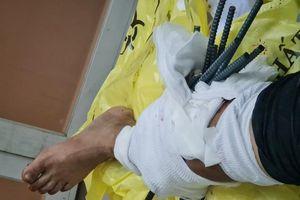 Kinh hoàng: Va chạm với xe ba gác, nam thanh niên bị 11 thanh sắt dài đâm xuyên chân
