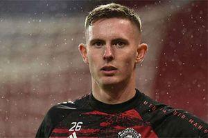 Solskjaer báo động Henderson thi đấu chểnh mảng