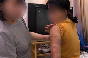 Ép các nữ tiếp viên bán dâm: Dùng dao chặt ngón tay