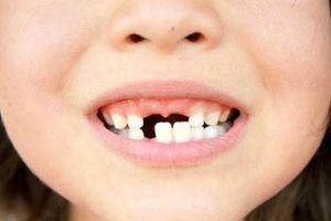 3 bệnh răng miệng thường gặp ở trẻ nhỏ