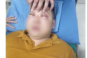 Thái 1 củ hành, nam thanh niên 25 tuổi bị sốc phản vệ, khó thở
