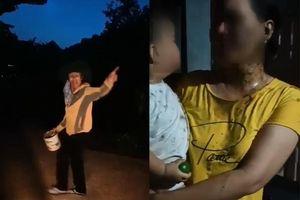 Phú Yên: Điều tra vụ tạt chất thải vào bé trai 2 tuổi khiến dư luận phẫn nộ