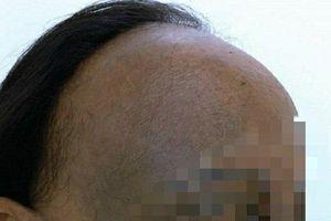 Người phụ nữ bỗng bị rụng tóc đến nửa đầu, đen sạm da không rõ lý do