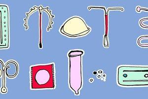 Ngừa thai - Bạn chọn cách nào?