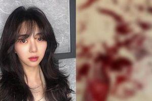 Mina (AOA) đăng ảnh cổ tay đầy máu, khẳng định: 'Các người chẳng biết gì về tôi cả'
