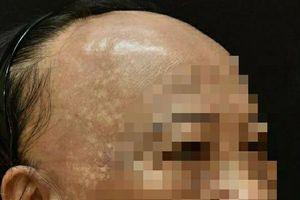 Ca bệnh hiếm gặp, bệnh nhân rụng tóc xơ hóa vùng trán