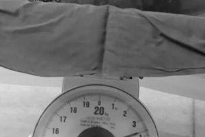 Khối u gần 4kg chèn ép nội tạng người phụ nữ