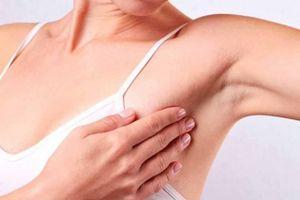 Hiểu lầm tai hại về ung thư vú