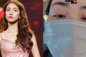 Hòa Minzy bất ngờ đăng ảnh cận đôi mắt sưng vù và đỏ hoe đáng lo lắng, chuyện gì đây?