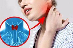 Bài thuốc hỗ trợ điều trị cường tuyến giáp