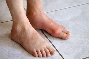 Cách giúp bạn phòng chống bệnh gout