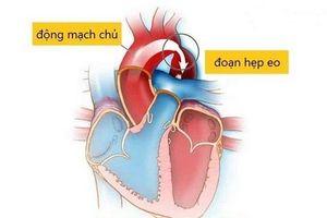 Hẹp eo động mạch chủ: Tiên lượng tốt nếu chẩn đoán sớm