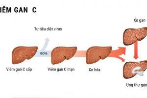 Tương tác giữa rượu và virus viêm gan C