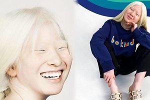 Cô bé bạch tạng bị bỏ rơi, nỗ lực vươn lên và trở thành người mẫu truyền cảm hứng