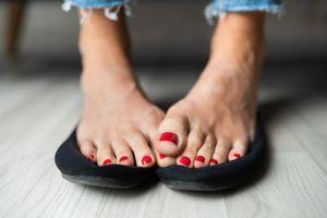 Thích đi giày nhưng lại bị ra mồ hôi chân mùa hè, đừng bỏ qua 10 mẹo sau