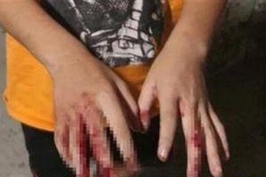 Vụ bé trai bị cha đánh dập tay: Không thường xuyên