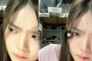 Dân mạng 'sốc' vì nữ idol Trung Quốc thổ huyết khi đang livestream