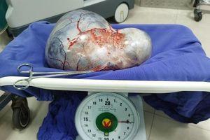 Bóc khối u buồng trứng khổng lồ