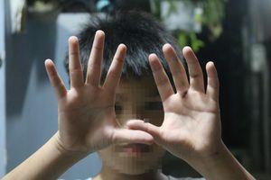 Sự thật thông tin bé trai bị cha đánh dập tay ở TP.HCM