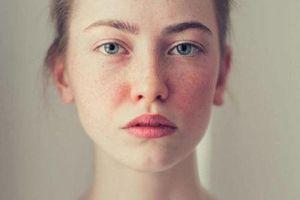 Cần làm gì khi làn da xuất hiện các đốm sắc tố?