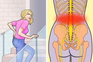 7 thói quen hàng ngày gây đau lưng dưới mà bạn cần sửa ngay