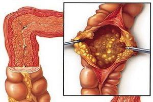 Một số bệnh lý ở ruột non thường gặp