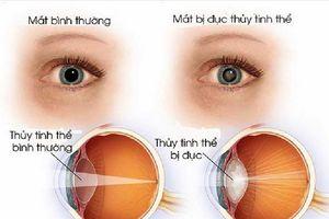 Mắt mờ đột ngột, coi chừng mất thị lực vĩnh viễn
