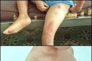Phẫn nộ với hình ảnh bé trai 6 tuổi bị cha dượng bạo hành, châm thuốc lá đang cháy vào người