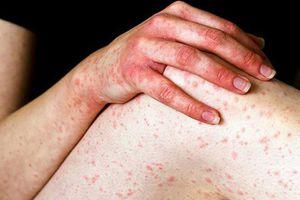 Tìm hiểu 10 bệnh ngứa ngoài da vào mùa hè thường gặp