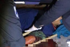 Kinh hãi nam công nhân bị chém gần lìa cánh tay trong KCN Long Thành