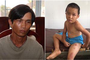 Khởi tố cha dượng bạo hành dã man, nhiều lần châm thuốc lá đang cháy vào con riêng của vợ