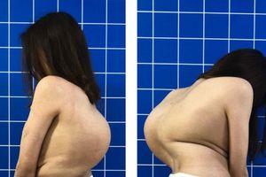 Phẫu thuật thành công 'khối mai rùa' trên cơ thể cô gái 22 tuổi