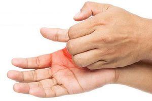 Những nguyên nhân khiến lòng bàn tay ngứa ran mà rất nhiều người gặp phải