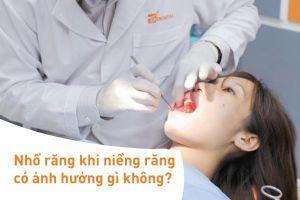 Nhổ răng khi niềng răng có ảnh hưởng gì không?
