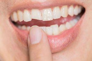 Mảng bám trên răng hình thành như thế nào?