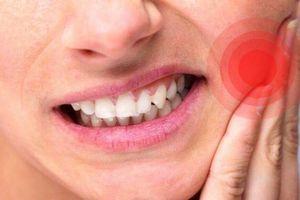 Gumimouth - Giải pháp từ thiên nhiên giúp cải thiện tình trạng nhiệt miệng tái phát dai dẳng