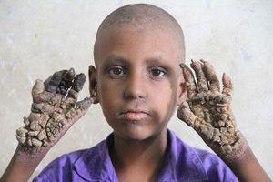 20 căn bệnh kỳ lạ, hiếm gặp nhất trên thế giới: Người cây, đầu tự phát nổ...
