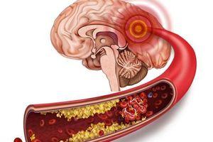 Xơ vữa mạch máu: Cảnh giác với đột quỵ đến bất kỳ lúc nào