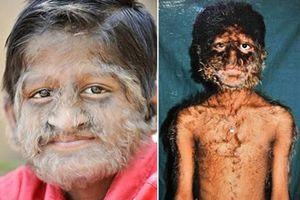 Những căn bệnh kỳ lạ nhất thế giới