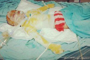 Xót xa hoàn cảnh bé gái 5 tuổi bị bỏng nặng