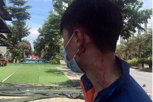 Vụ cướp điện thoại, đâm người giữa ban ngày ở Hà Nội: Công an điều thêm lực lượng đảm bảo an ninh