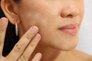 Giải quyết triệt để các vấn đề về da một cách đơn giản