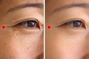 Bài tập 1 phút của người Nhật giúp xóa nếp nhăn quanh mắt