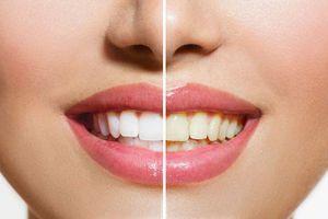2 cách làm trắng răng nhanh nhất với chanh
