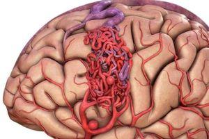Đột biến gen - nguyên nhân gây dị dạng mạch máu não