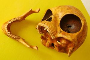 Những hộp sọ kỳ lạ nhất từng được phát hiện trong lịch sử