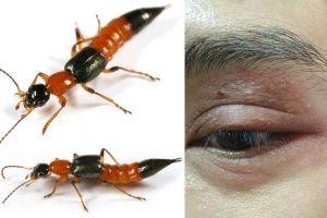 Làm gì khi bị kiến ba khoang cắn?