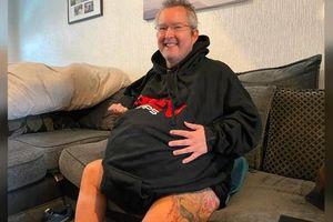 Người đàn ông sở hữu quả thận nặng... 40 kg